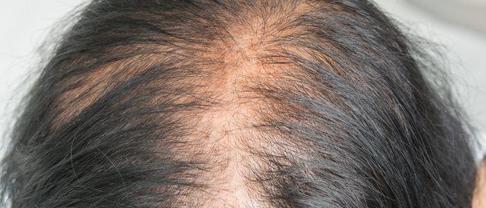 Female Baldness The Treatments Available For This Problem